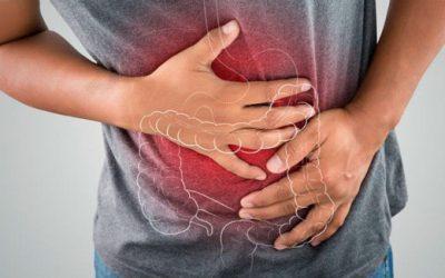 Síndrome de Colon irritable